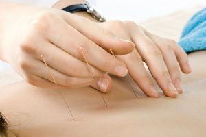 acupuncture WI